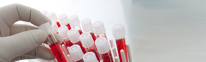 Fibrina Leucoplaquetária para Enxertos